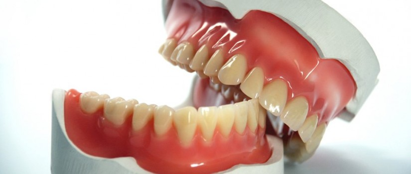Dental-prosthetics