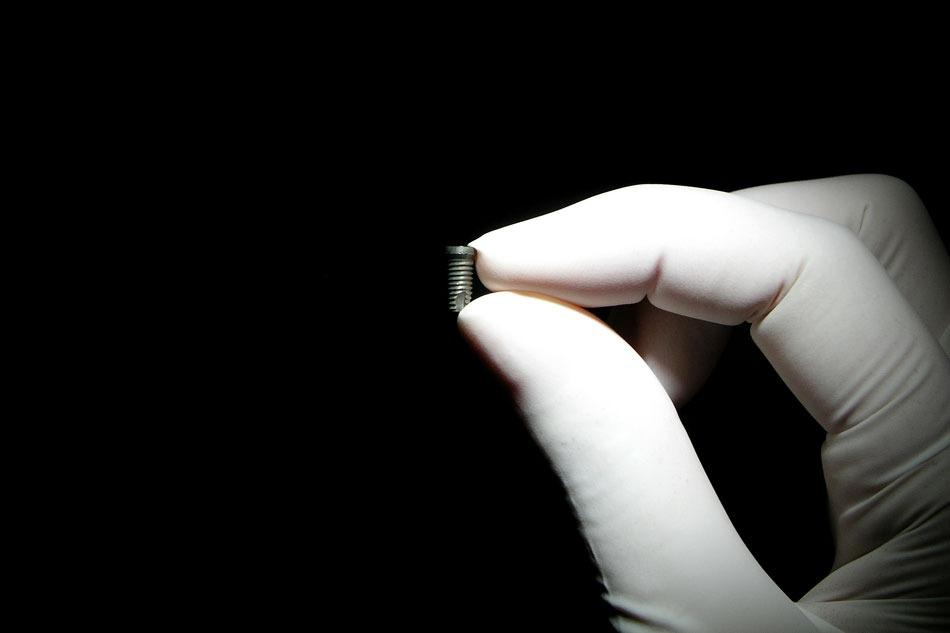 Implanty-01b
