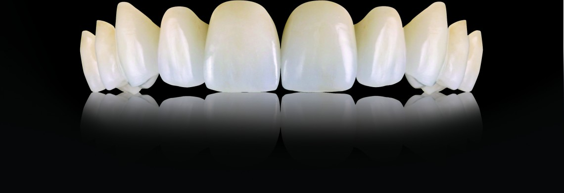 Oral-Art_Oral-Arts-Dental-Laboratories---IPS-emax-Crowns_67211