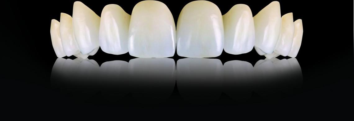 Oral-Art_Oral-Arts-Dental-Laboratories---IPS-emax-Crowns_67211