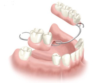dental-implants-4