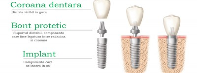 implant-dentar-alcatuire1