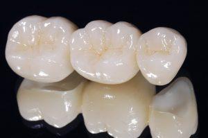 zirconia crowns hyderabad dentist
