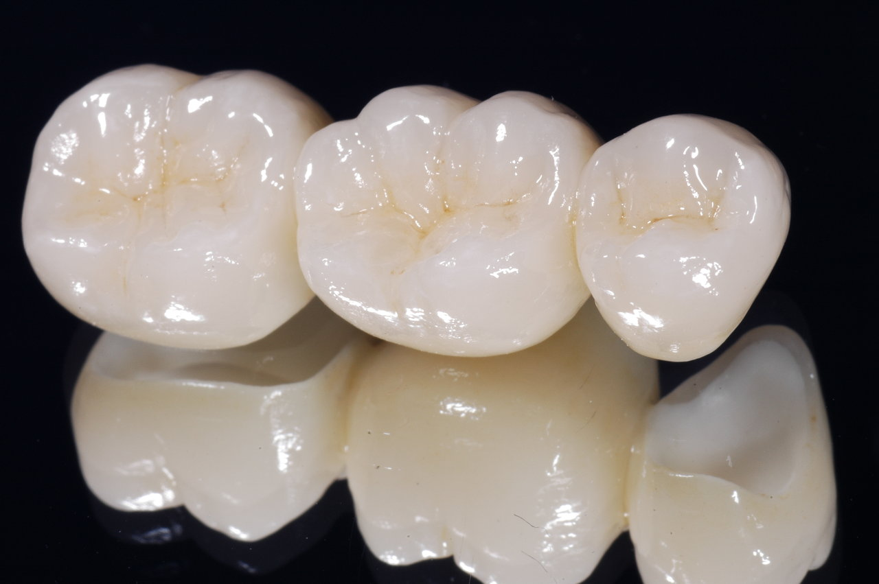 zirconia crowns hyderabad dentist